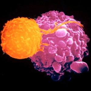 T Cell (orange) killing a cancer cell (mauve).