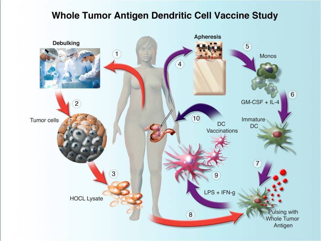 """Adoptive T-Cell"" Immunotherapy Shows Activity Against Advanced Ovarian Cancer in Phase I Study"